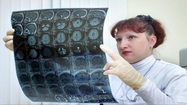 ضعف الذاكرة قد يشير إلى أمراض معينة
