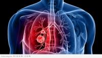 """""""دراسة حديثة"""" أمراض الرئة تزيد فرص الإصابة بالخرف"""