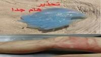 خفر السواحل تحذر المواطنين من كائن بحري سام في شواطئ المهرة