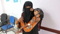 الموت جوعاً في اليمن... فقراء يسمعون عن المساعدات ولا يرونها