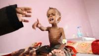 الغذاء العالمي يدعو العالم لتحرك عاجل تجاه أزمة الغذاء في اليمن