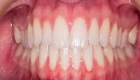 اضطراب النوم قد يكون سببًا في المعاناة من صرير الأسنان